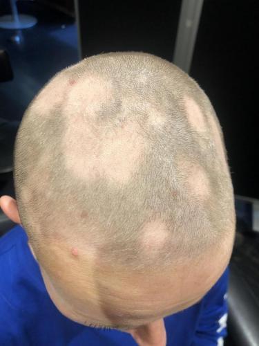 Begyndende hårtab. Hårtab kan komme af flere ting, f.eks. medicin, stress, Alopecia.