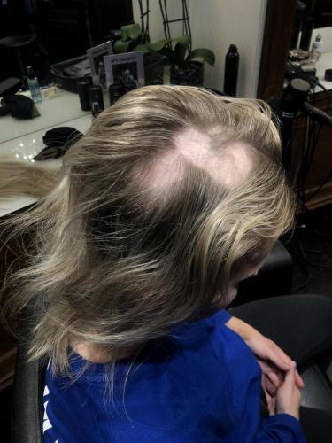 Et hårtab kan se voldsomt ud, her vælger vi at fjerne alt håret og kunden får en paryk af ægte hår.