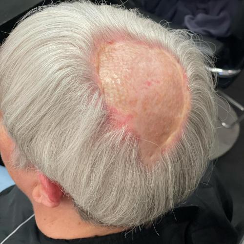 Er du blevet opereret eller lider du af pletskaldethed, løsningen kan være at lime hår på de bare pletter.