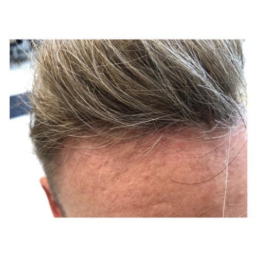 "Contact skin, ingen vil ""spotte"" der er limet hår på toppen."