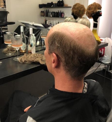 Klargøring til af lime håret på, Contact skin.